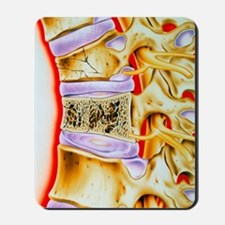Osteoporitic spine Mousepad