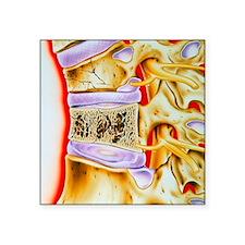 "Osteoporitic spine Square Sticker 3"" x 3"""