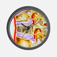 Osteoporitic spine Wall Clock