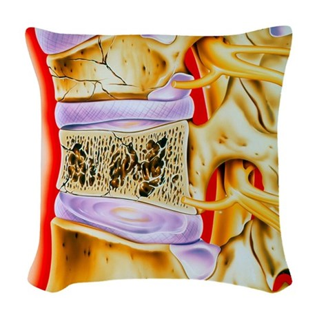 Osteoporitic spine Woven Throw Pillow