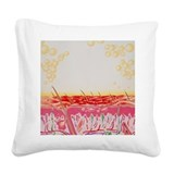 Skin disorder artwork Square Canvas Pillows