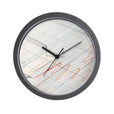 Lie detector traces Wall Clock