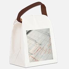 Lie detector traces Canvas Lunch Bag