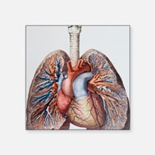 "Lung blood vessels Square Sticker 3"" x 3"""