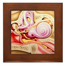 Otitis media of ear Framed Tile