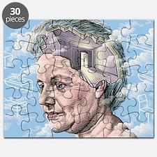 Alzheimer's disease Puzzle