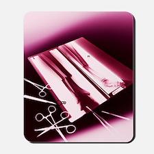 Leg fracture, X-ray Mousepad
