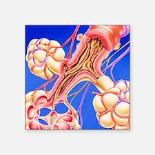 "Pulmonary disease Square Sticker 3"" x 3"""