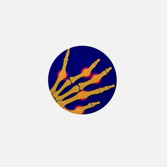Arthritic hand Mini Button