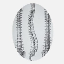 Spine anatomy Oval Ornament