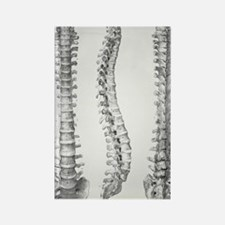 Spine anatomy Rectangle Magnet