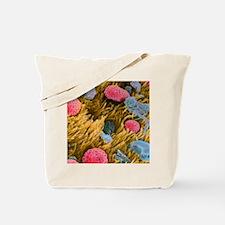 Allergens in trachea Tote Bag