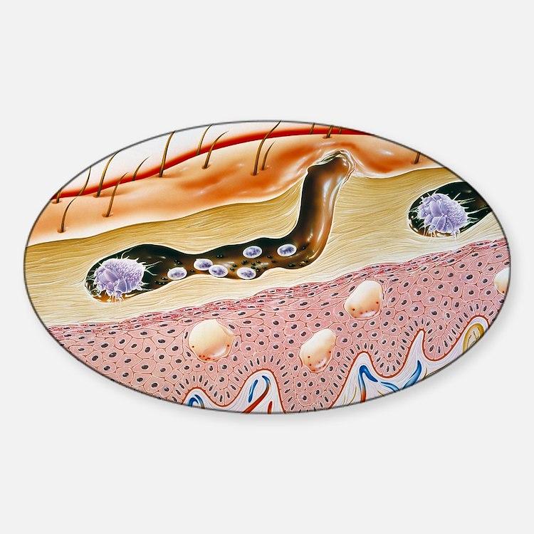 Scabies Sticker (Oval)