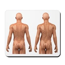 Scoliosis of the spine, artwork Mousepad