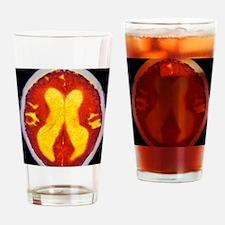 Alzheimer's disease brain, coloured Drinking Glass