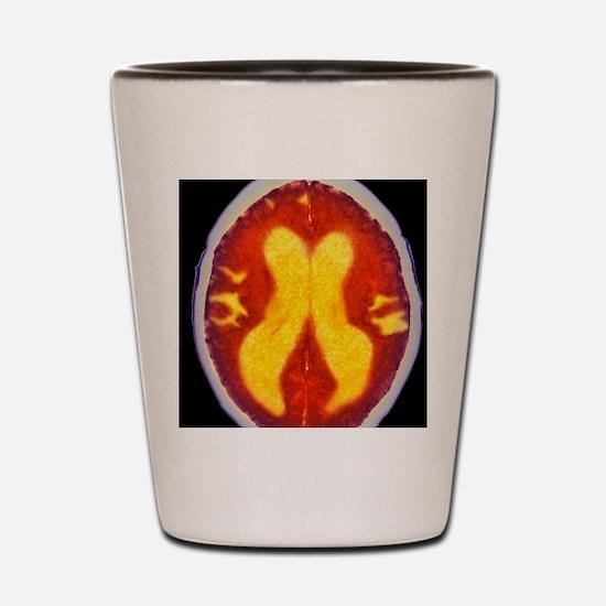 Alzheimer's disease brain, coloured CT  Shot Glass