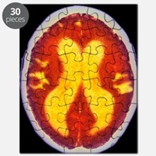 Alzheimer's disease brain, coloured CT scan Puzzle