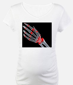 Arthritic hand Shirt