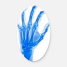 Arthritic hand, X-ray Oval Car Magnet