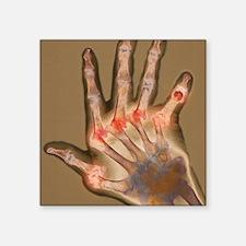 """Arthritic hand, X-ray Square Sticker 3"""" x 3"""""""