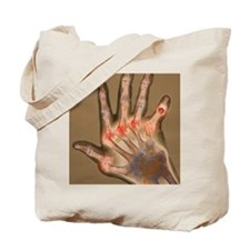 Arthritic hand, X-ray Tote Bag