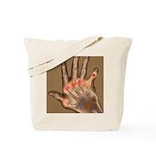 Arthritic hand, X-ray Tote Bag