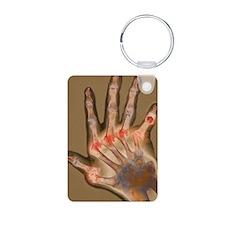Arthritic hand, X-ray Keychains
