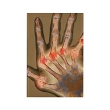Arthritic hand, X-ray Rectangle Magnet