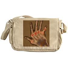 Arthritic hand, X-ray Messenger Bag