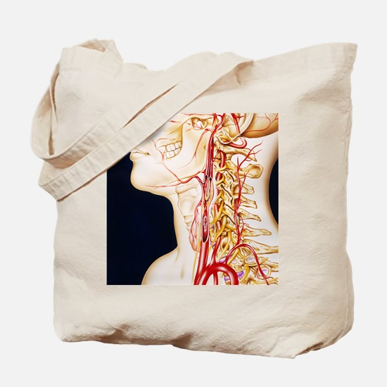 Vascular diseases Tote Bag