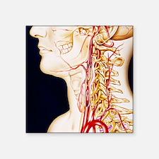"Vascular diseases Square Sticker 3"" x 3"""