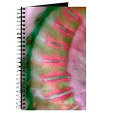 Arthritis of the spine, X-ray Journal