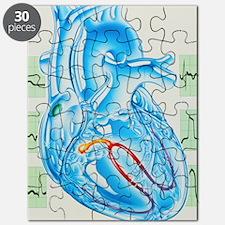 Artwork of cardiac arrhythmia with heart Puzzle