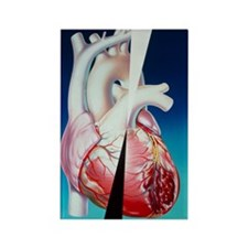 Artwork of heart attack due to at Rectangle Magnet