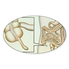 Artwork showing appendicitis Decal