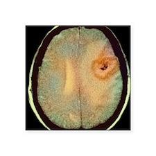 "Astrocytoma brain cancer, C Square Sticker 3"" x 3"""