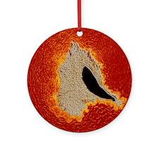 Atherosclerosis Round Ornament