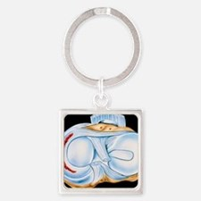 Artwork of torn knee cartilage in  Square Keychain