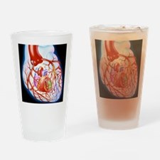 Artwork showing a heart with angina Drinking Glass