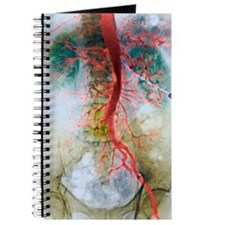 Blocked artery, X-ray Journal