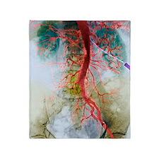 Blocked artery, X-ray Throw Blanket