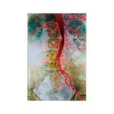 Blocked artery, X-ray Rectangle Magnet