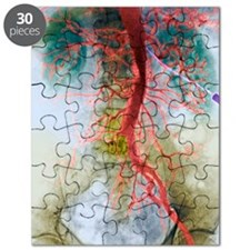 Blocked artery, X-ray Puzzle