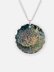 Bone cancer cell, SEM Necklace