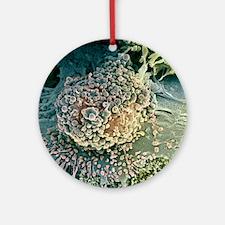 Bone cancer cell, SEM Round Ornament
