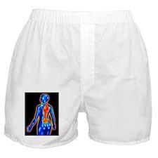 Back pain Boxer Shorts