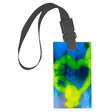 Barium enema X-ray showing cance Luggage Tag