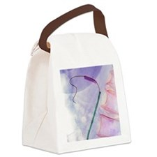 Balloon angioplasty, X-ray Canvas Lunch Bag
