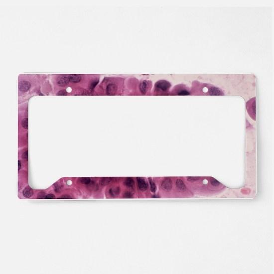 Breast cancer cells, light mi License Plate Holder