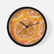 Benign breast disease cells, TEM Wall Clock